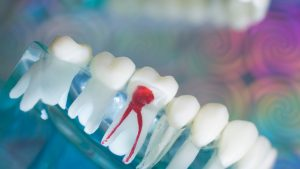 A Check on how expensive is root canal treatment